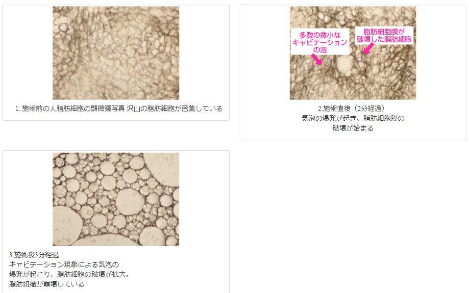 キャビタライズ キャビテーション効果の顕微鏡写真